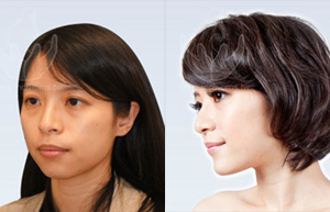 3D Custom-Made Orthognathic Surgery 3D Custom-Made Orthognathic Surgery
