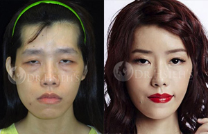Facial Feminization Surgery 3D Custom-Made Forehead Contouring Surgery 3D Custom-Made Orthognathic Surgery 3D Custom-Made Chin Implant Surgery / Genioplasty
