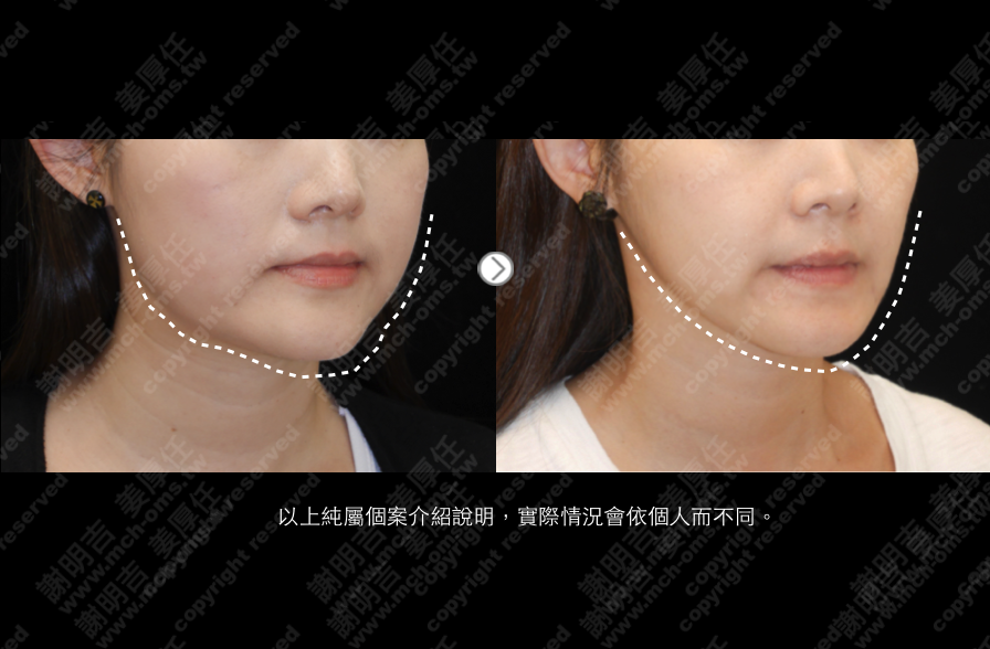 3D Custom-Made Orthognathic Surgery 3D Custom-Made Chin Implant Surgery / Genioplasty