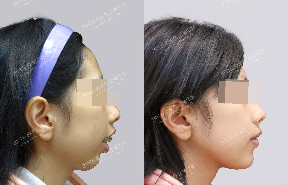 Comprehensive TMJ Treatment 3D Custom-Made Orthognathic Surgery 3D Custom-Made Chin Implant Surgery / Genioplasty