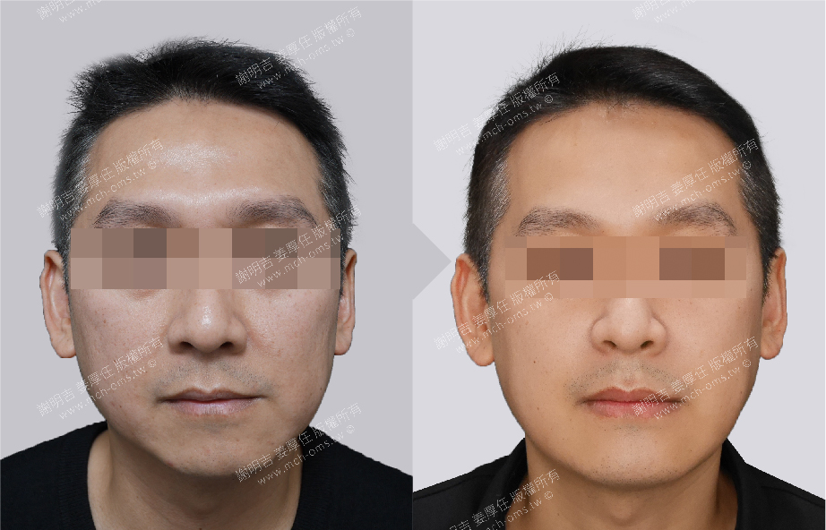 3D Custom-Made Orthognathic Surgery 3D Custom-Made Chin Implant Surgery / Genioplasty Management of Snoring & Sleep Apnea
