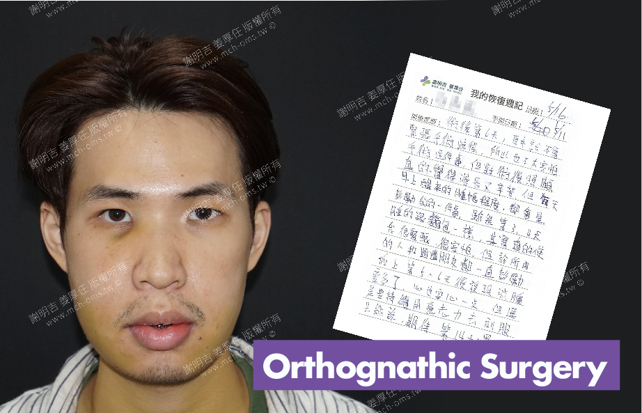 2017-05-16回診病患 3D Navigation Orthognathic Surgery