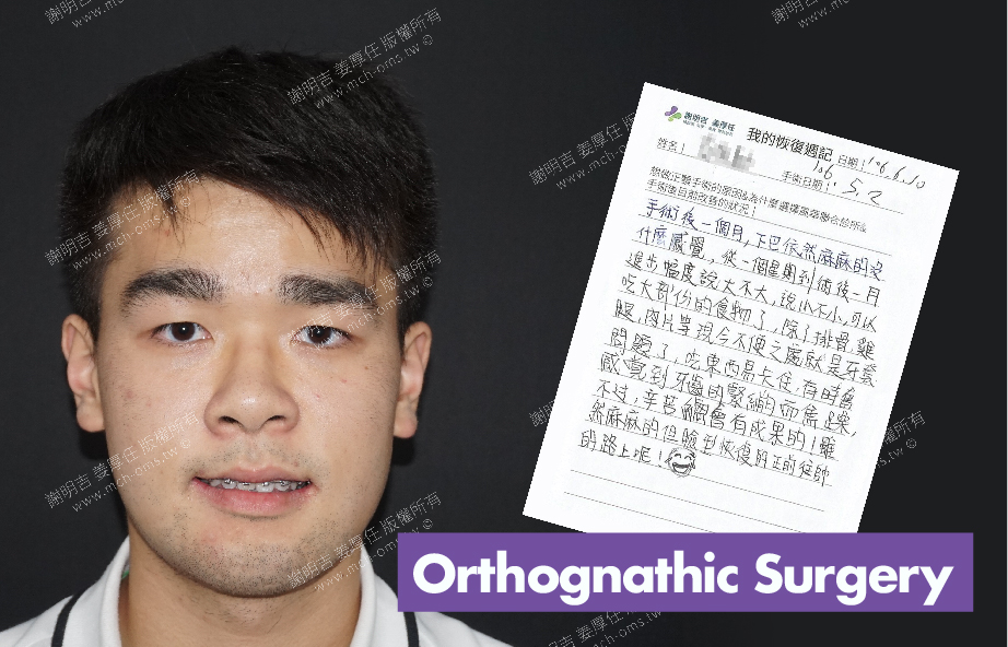 2017-06-10回診病患  3D Navigation Orthognathic Surgery