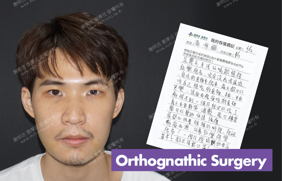 2017-06-12回診病患  3D Navigation Orthognathic Surgery