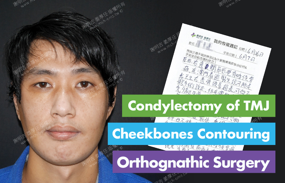2017-06-16回診病患  Condylectomy of TMJ 3D Navigation Cheekbones Contouring Surgery 3D Navigation Orthognathic Surgery