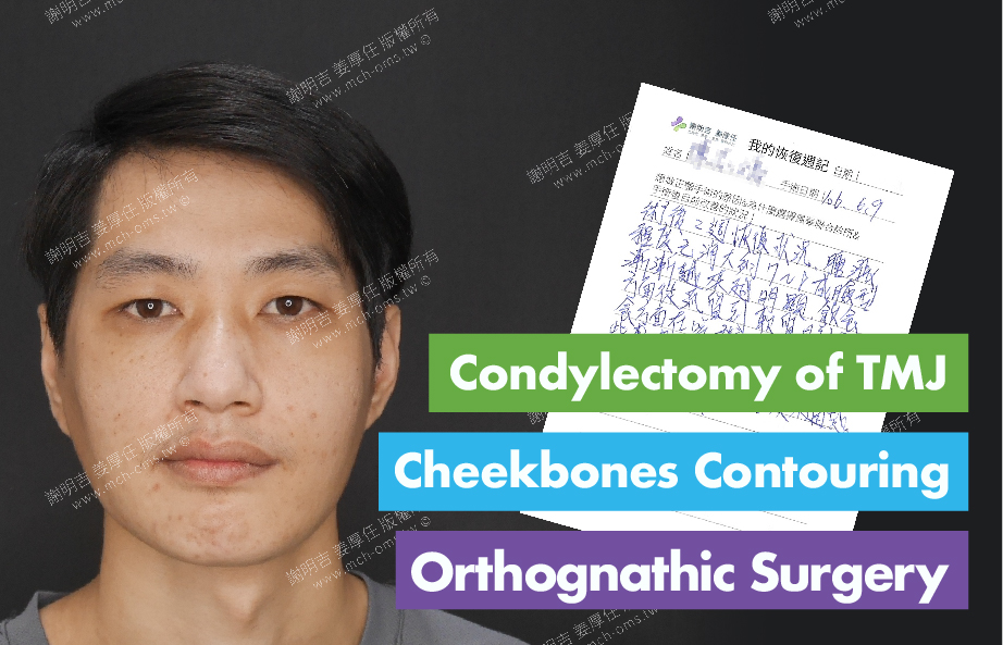 2017-06-23回診病患 Condylectomy of TMJ 3D Navigation Cheekbones Contouring Surgery 3D Navigation Orthognathic Surgery