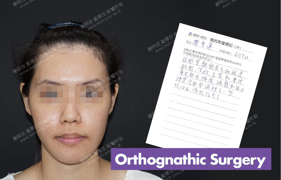 2017-06-23回診病患 3D Navigation Orthognathic Surgery
