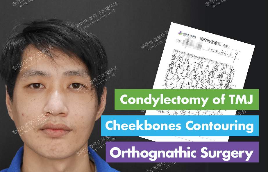 2017-07-08回診病患 Condylectomy of TMJ 3D Navigation Cheekbones Contouring Surgery 3D Navigation Orthognathic Surgery