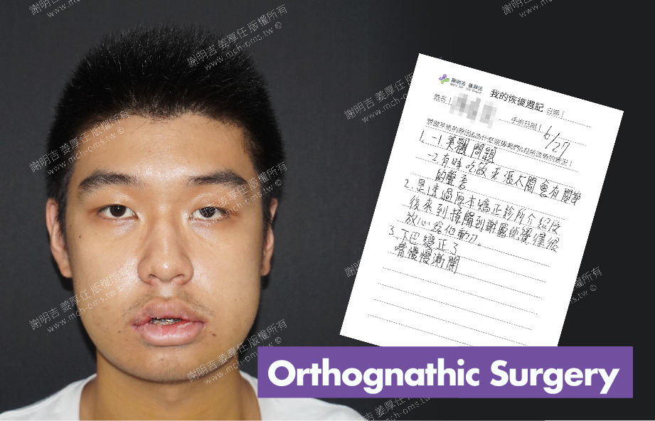 2017-07-04回診病患 3D Navigation Orthognathic Surgery