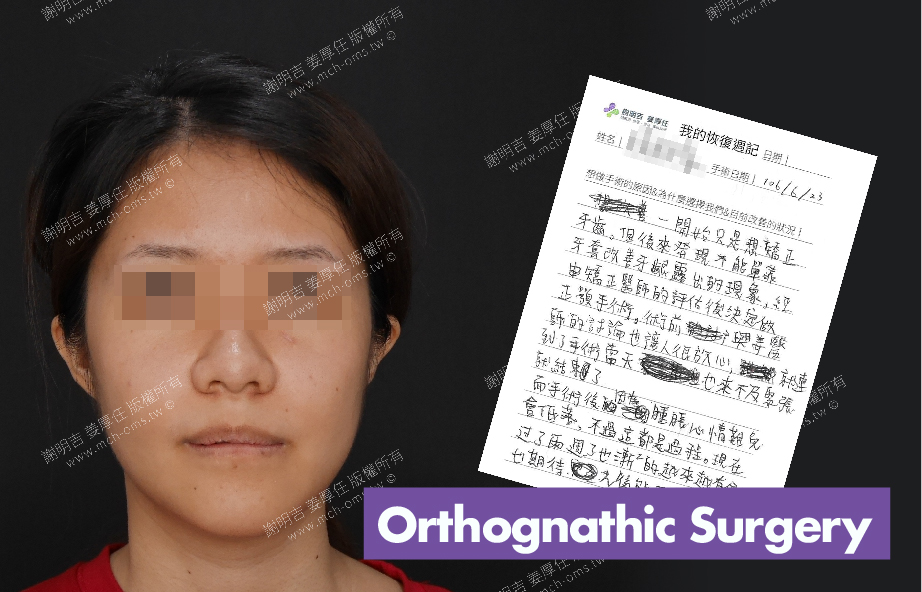 2017-07-08回診病患 3D Navigation Orthognathic Surgery