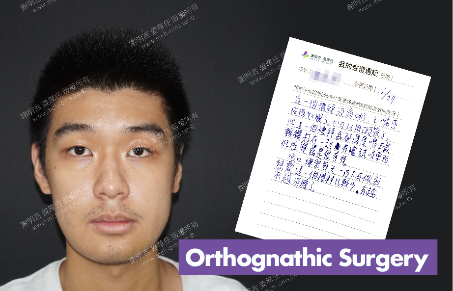 2017-07-10回診病患 3D Navigation Orthognathic Surgery