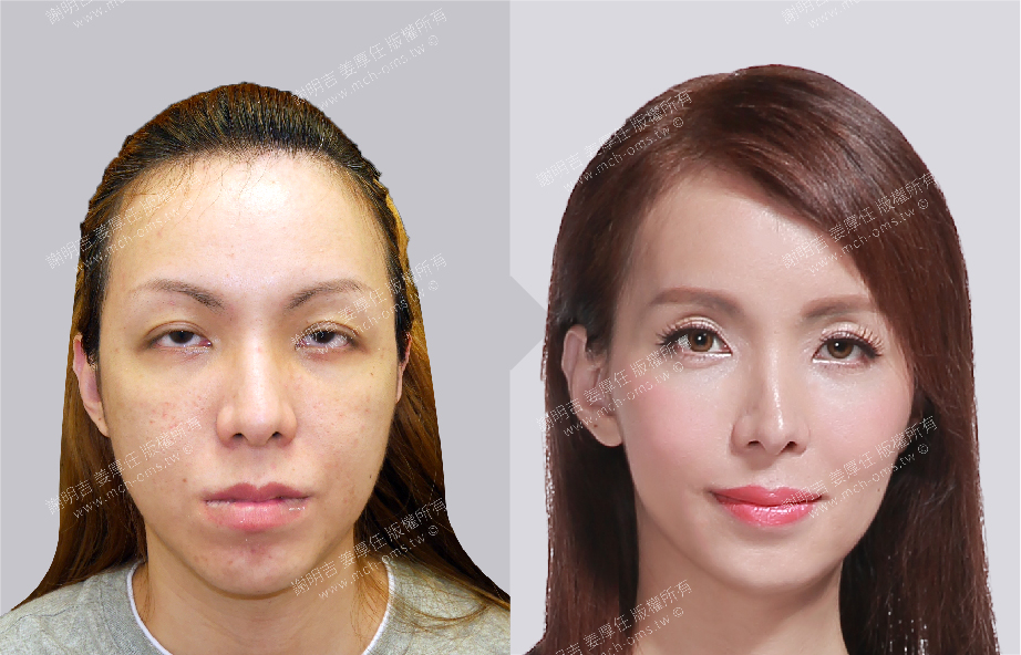 Facial Feminization Surgery 3D Forehead Contouring Surgery 3D Orthognathic Surgery