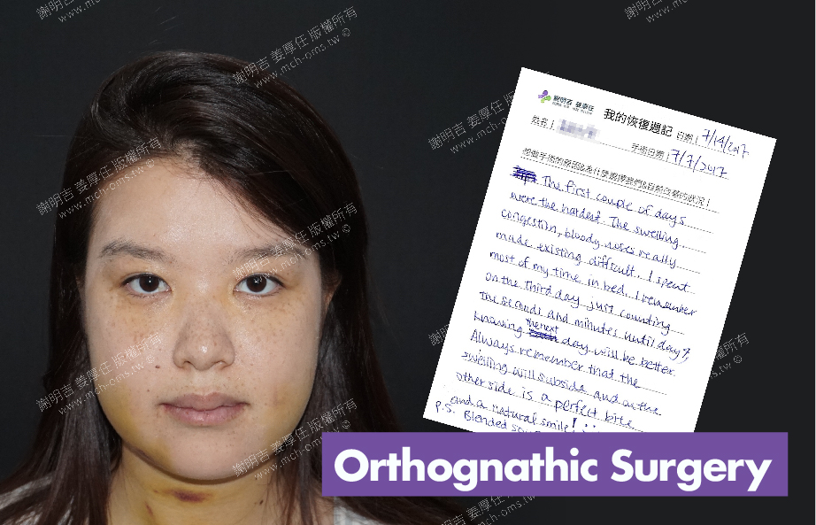 2017-07-14回診病患 3D Navigation Orthognathic Surgery