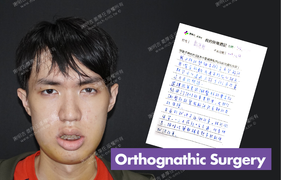 2017-07-19回診病患 3D Navigation Orthognathic Surgery