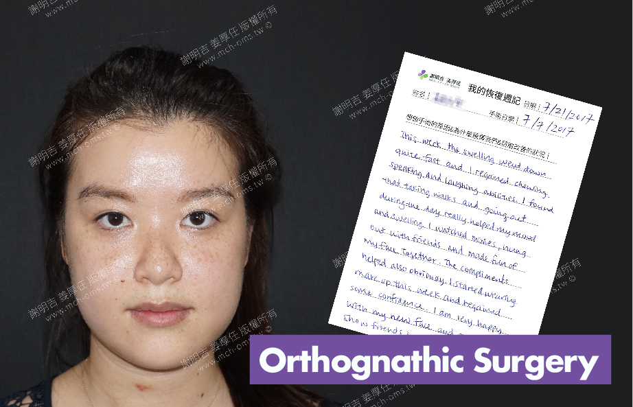 2017-07-21回診病患 3D Navigation Orthognathic Surgery