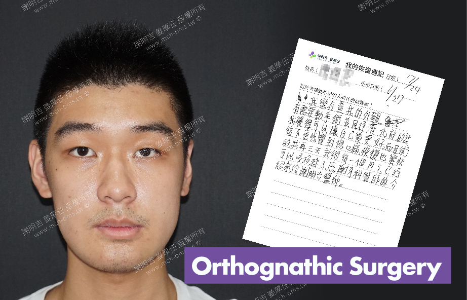 2017-07-24回診病患 3D Navigation Orthognathic Surgery