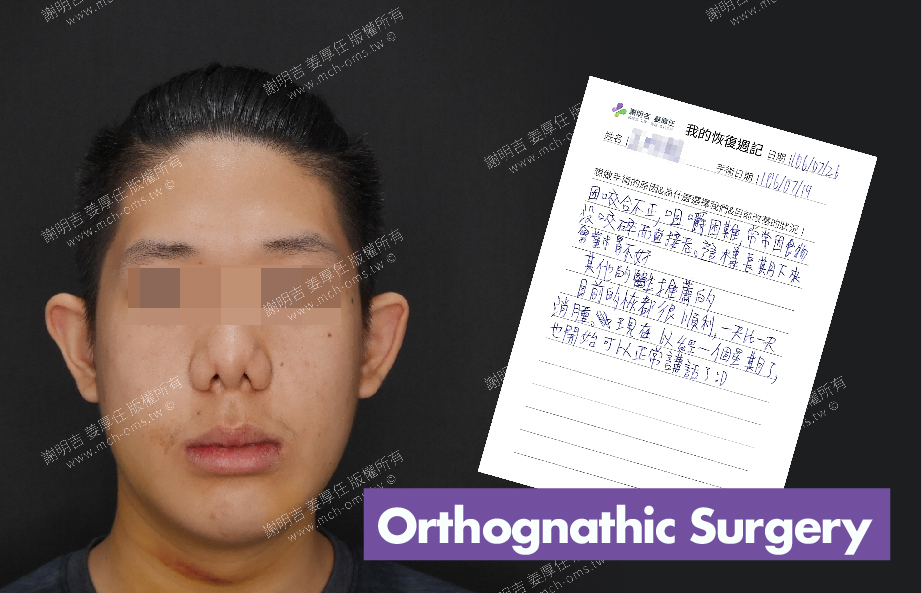 2017-07-26回診病患 3D Navigation Orthognathic Surgery