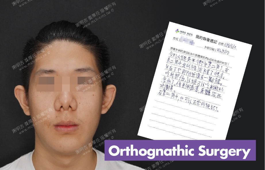 2017-08-02回診病患 3D Navigation Orthognathic Surgery