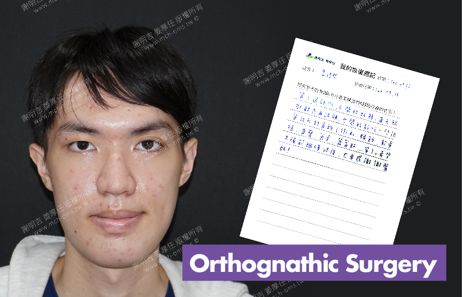 2017-07-25回診病患 3D Navigation Orthognathic Surgery