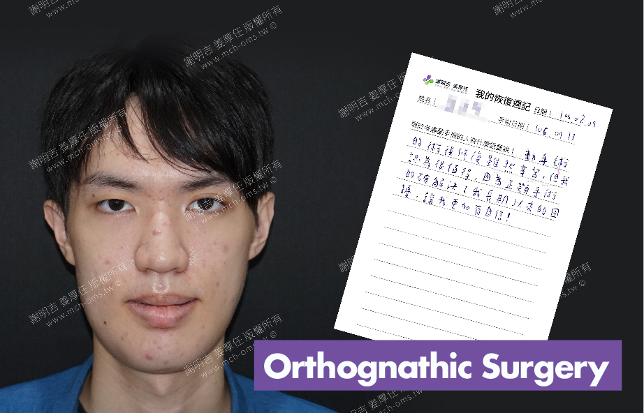 2017-08-09回診病患 3D Navigation Orthognathic Surgery