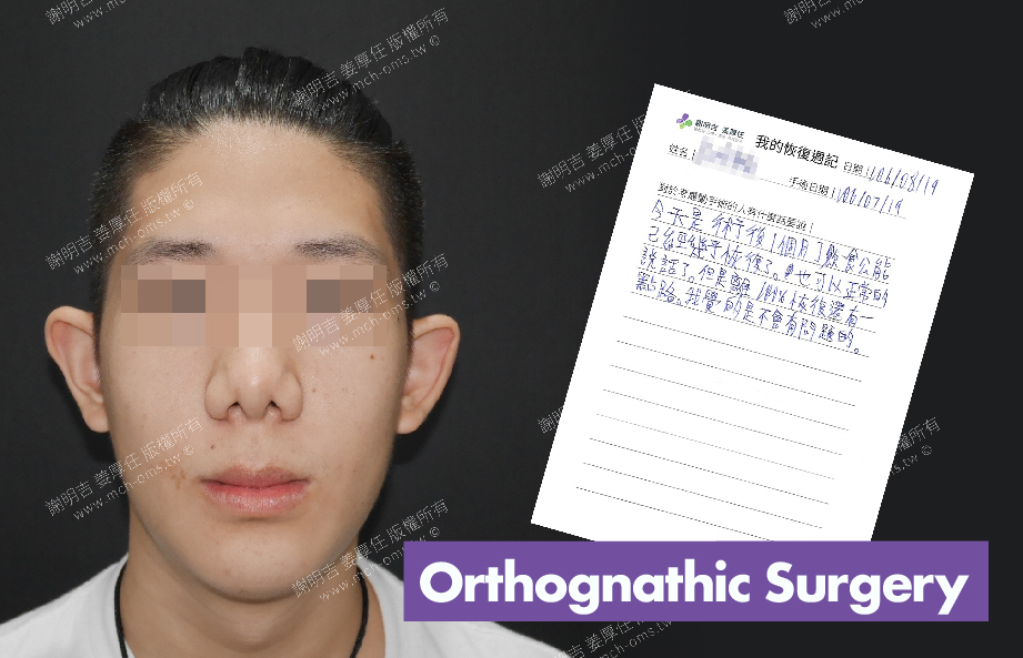 2017-08-19回診病患 3D Navigation Orthognathic Surgery