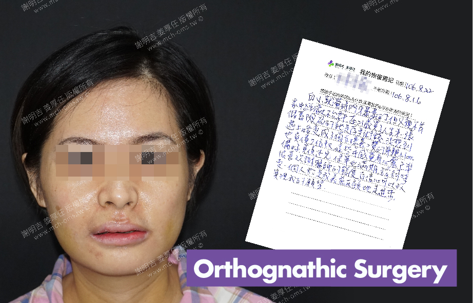 2017-08-22回診病患 3D Navigation Orthognathic Surgery