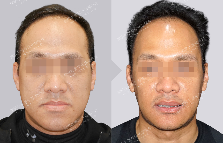 3D Custom-Made Orthognathic Surgery 3D Custom-Made Chin Implant Surgery