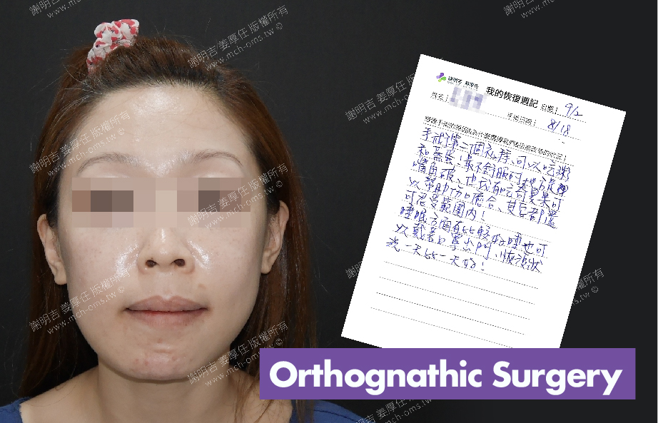 2017-09-02回診病患 3D Navigation Orthognathic Surgery