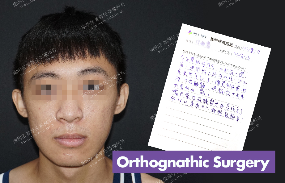 2017-09-09回診病患 3D Navigation Orthognathic Surgery