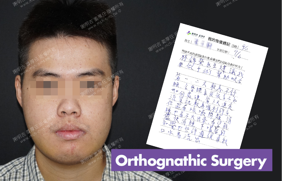 2017-09-11回診病患 3D Navigation Orthognathic Surgery