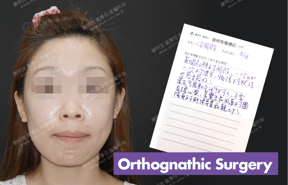 2017-09-08回診病患 3D Navigation Orthognathic Surgery