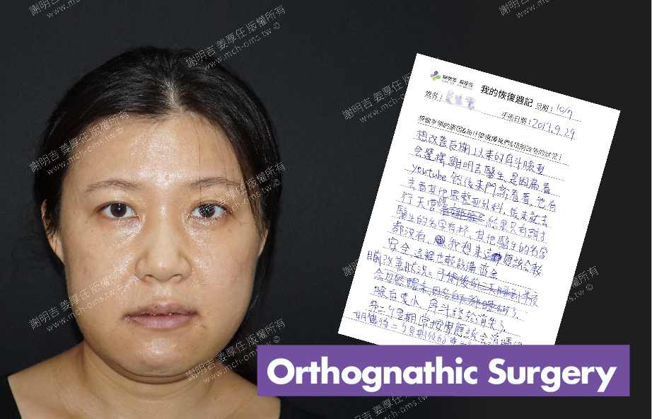 2017-10-07回診病患 3D Navigation Orthognathic Surgery