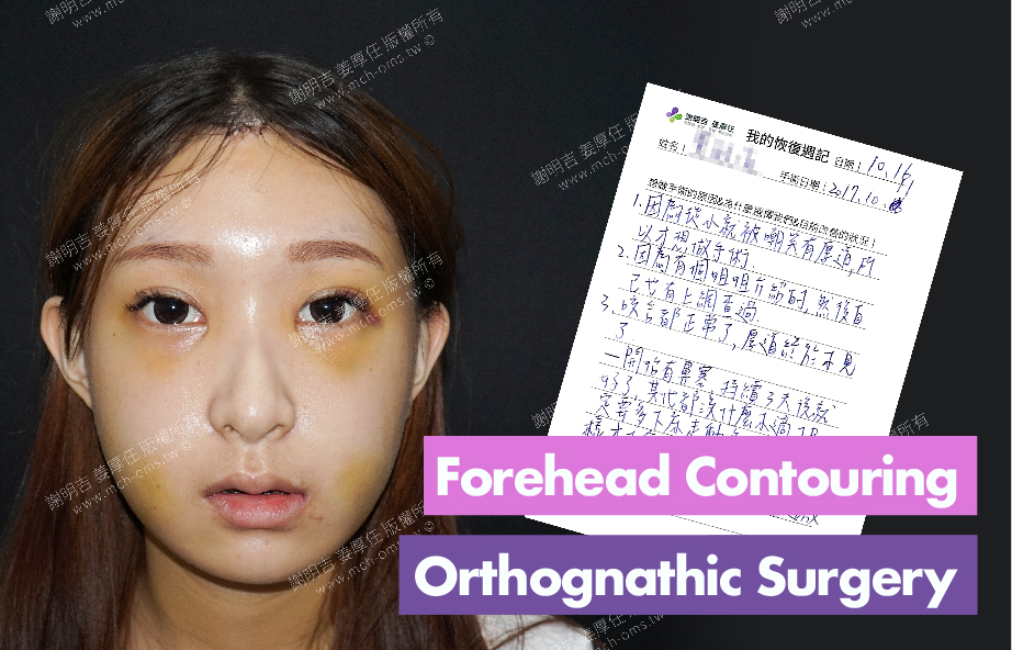 2017-10-16回診病患 3D Navigation Orthognathic Surgery
