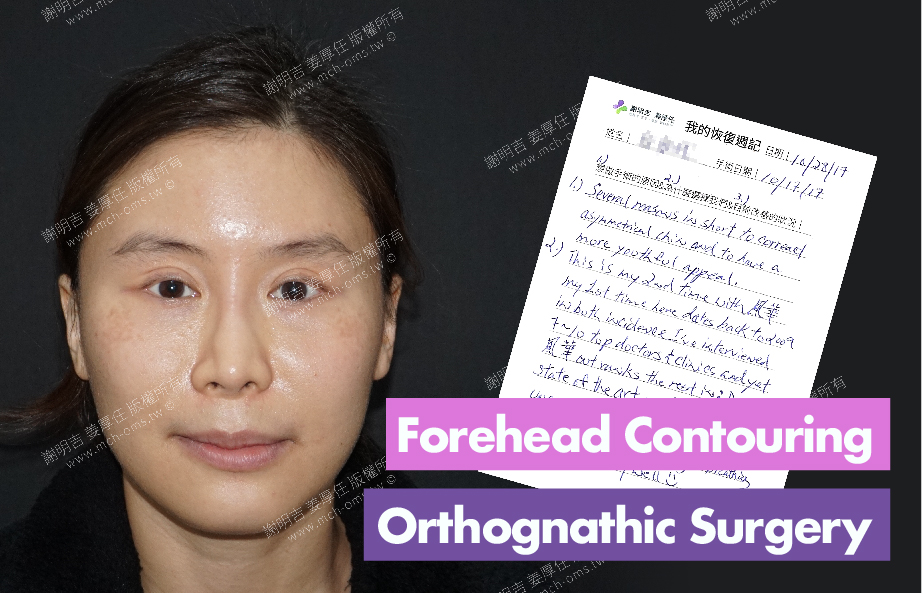 2017-11-01回診病患 3D Forehead Contouring Surgery 3D Navigation Orthognathic Surgery