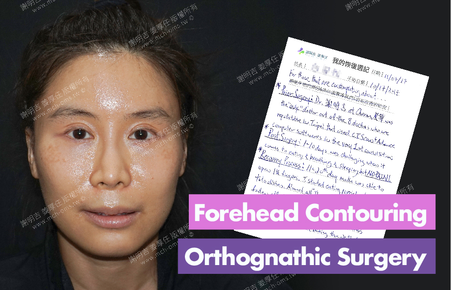 2017-11-07回診病患  3D Forehead Contouring Surgery 3D Navigation Orthognathic Surgery