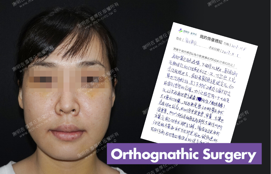 2017-11-08回診病患  3D Navigation Orthognathic Surgery