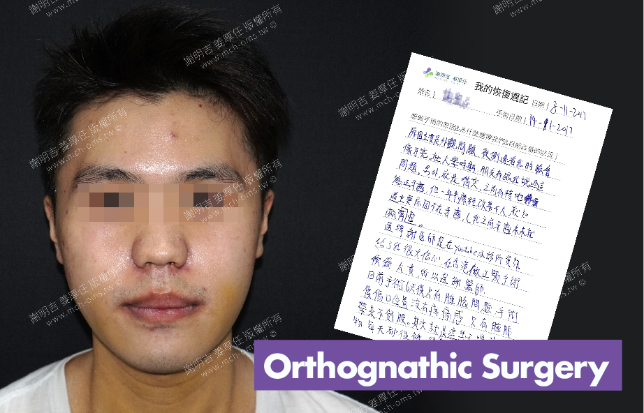 2017-11-14回診病患 3D Navigation Orthognathic Surgery