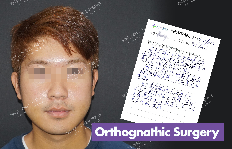 2017-11-21回診病患 3D Navigation Orthognathic Surgery