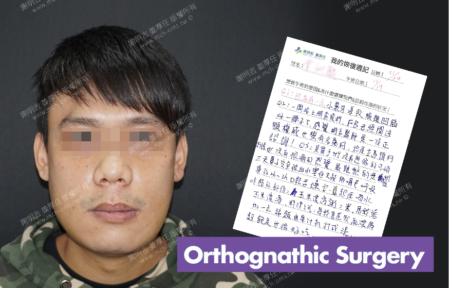2017-11-24回診病患 3D Navigation Orthognathic Surgery