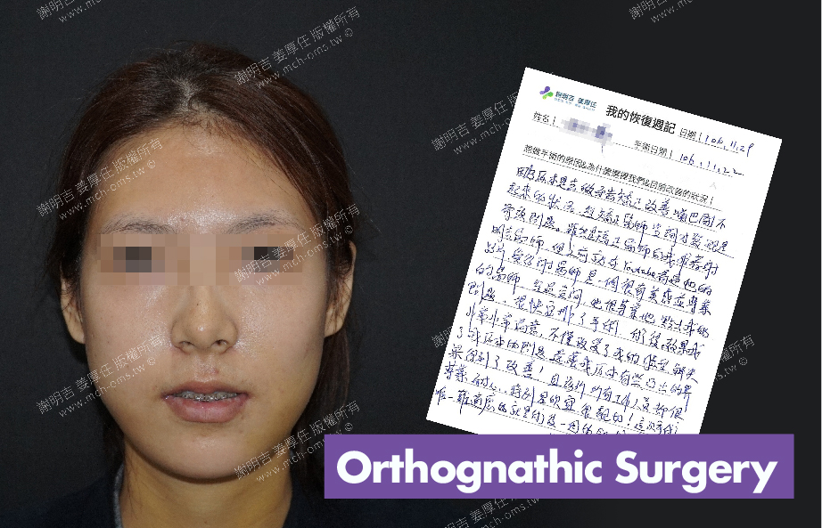 2017-11-29回診病患 3D Navigation Orthognathic Surgery