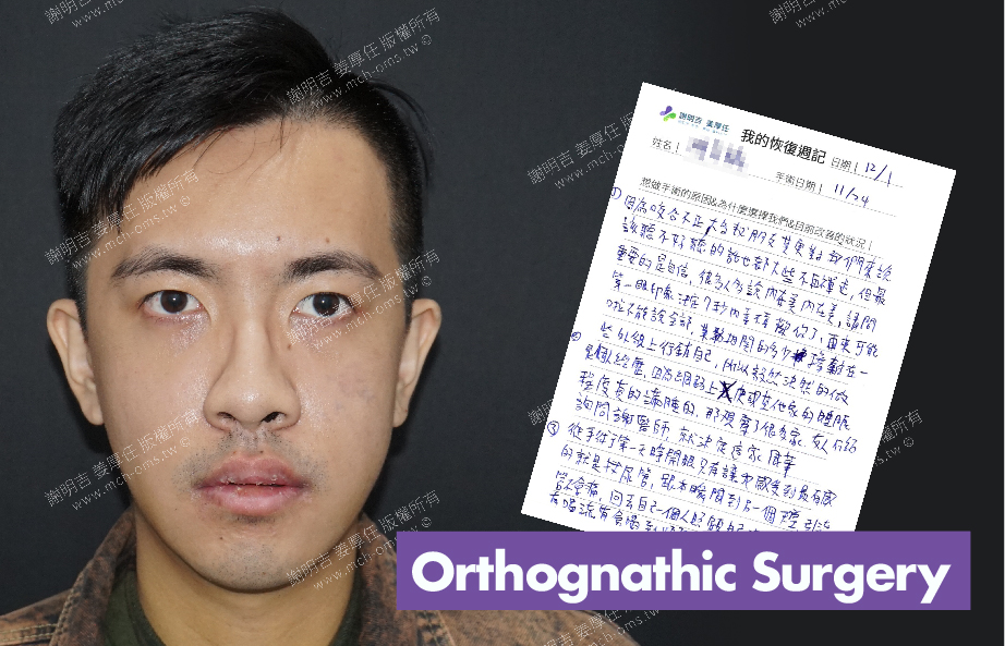 2017-12-01回診病患 3D Navigation Orthognathic Surgery