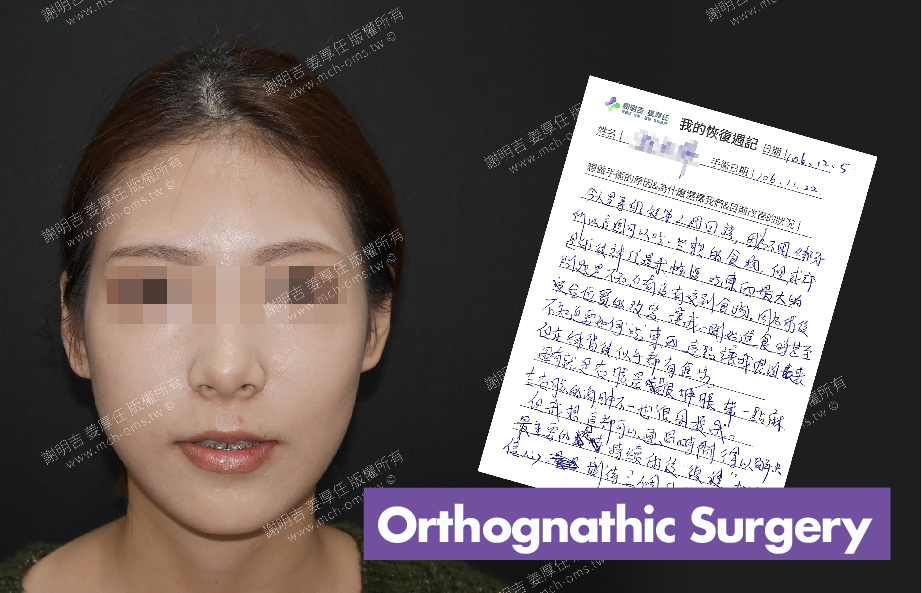 2017-12-05回診病患 3D Navigation Orthognathic Surgery