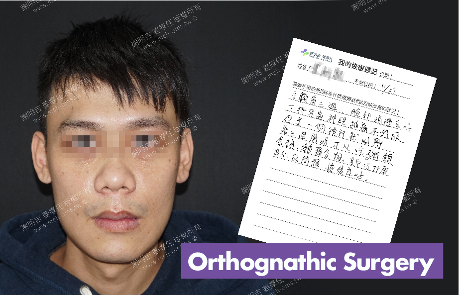 2017-12-08回診病患 3D Navigation Orthognathic Surgery