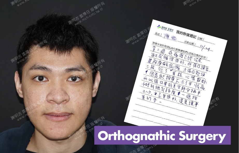 2017-12-11回診病患 3D Navigation Orthognathic Surgery