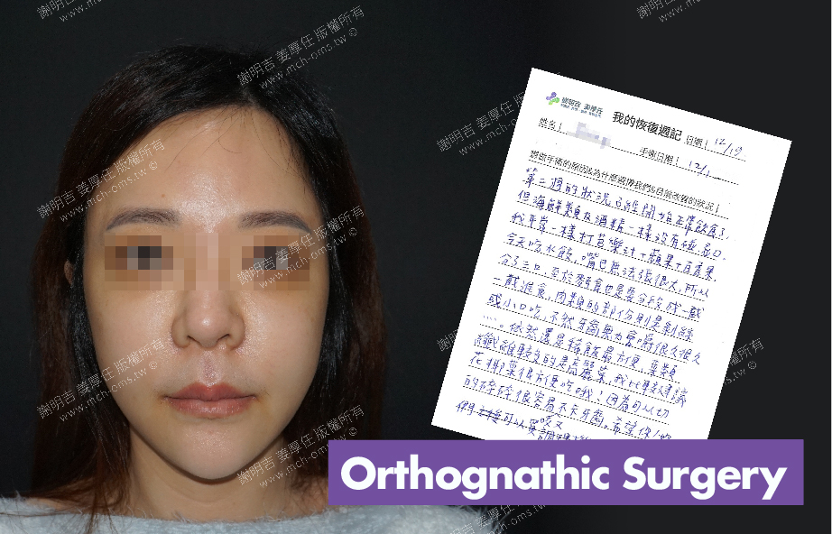 2017-12-19回診病患 3D Navigation Orthognathic Surgery