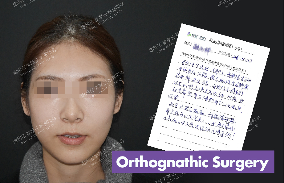 2017-12-23回診病患 3D Navigation Orthognathic Surgery