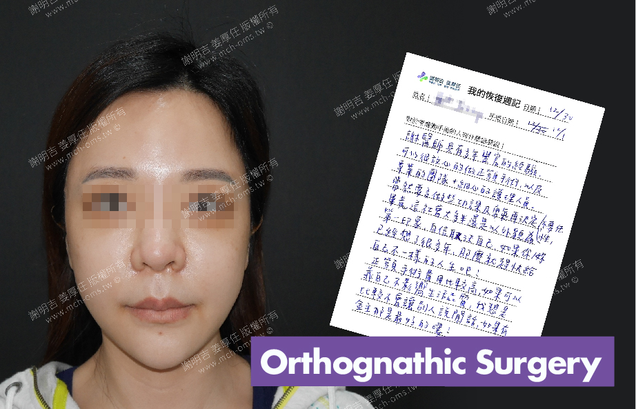 2017-12-30回診病患 3D Navigation Orthognathic Surgery