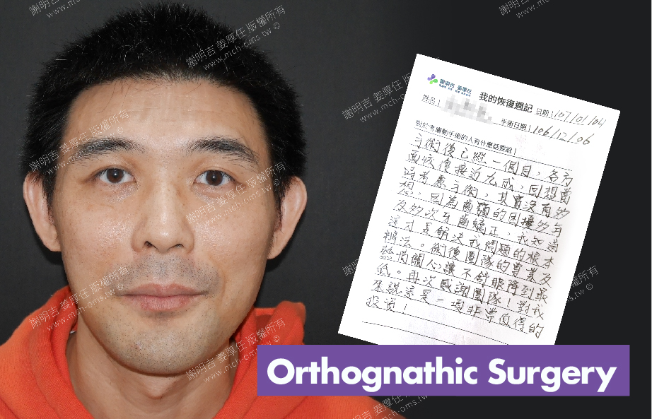 2018-01-02回診病患 3D Navigation Orthognathic Surgery