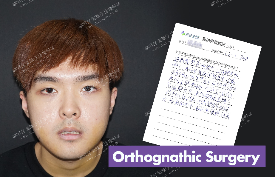2018-01-19回診病患 3D Navigation Orthognathic Surgery