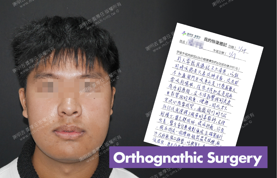 2018-01-24回診病患 3D Navigation Orthognathic Surgery